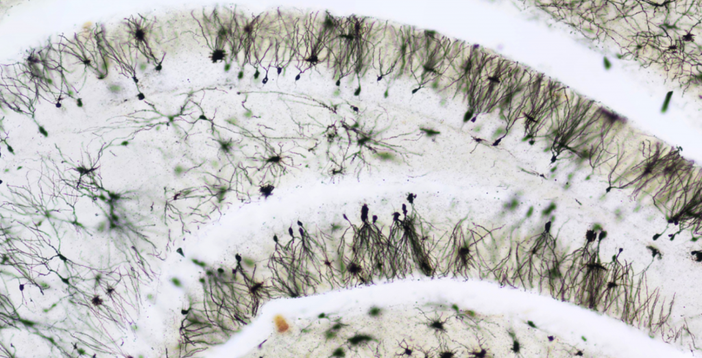 dentate granule neurons in dentate gyrus of Down syndrome mouse model