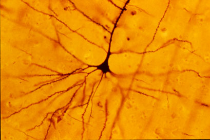 A Golgi stained human neocortical pyramidal neuron. Morris et al studied cells like this to determine the affect of sexual experience on the adult brain. Using Neurolucida, they saw shorter, less extensive dendrites in hamsters which mated during adolescence versus controls.