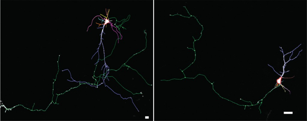 Mice with the  NHE6 gene mutation show less dendritic branching. Using Neurolucida, researchers traced a GFP-labeled neuron reconstructed with confocal z stacks in a wild type mouse (left) and a mouse with a mutant NHE6 gene (right).
