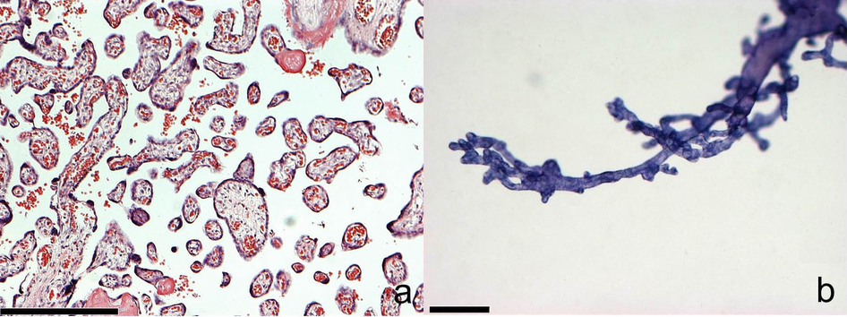 (a,b) Comparison of the microscopic aspects of a thin (4–6 μm) histological section of a human placenta after staining with hematoxylin/eosin (a) with the microscopic aspects of a whole-mount isolated villous tree after staining with hematoxylin (b). The scale bars in a and b are 250 μm. (a) Various cross- and longitudinal sections of villi can be recognized. The stromal architecture inside the sectioned villi is visible. The cross-sections of branches belong to an unknown number of villous trees. (b) A single villous tree is visible, and branches are not sectioned. The hierarchical positions of nodes (branching points) and the branching topology can be recognized.