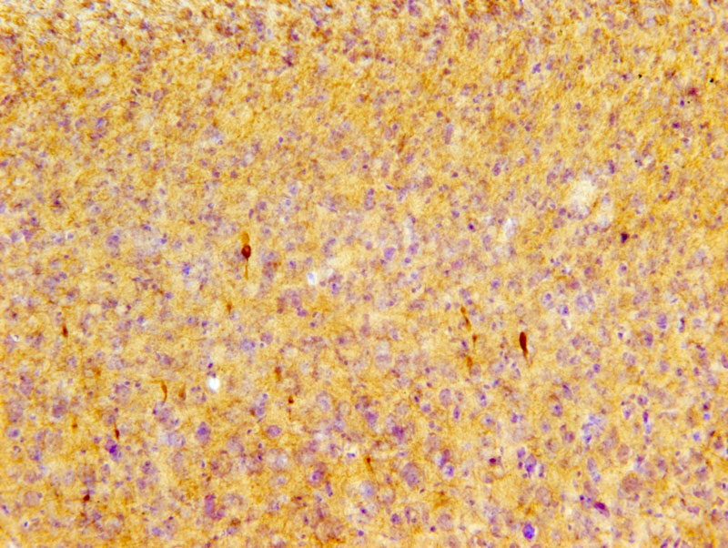 Phosphorylated tau pS422 immunoreactive profiles in the cortex of P301Smice after repetitive mild TBI. Image courtesy of Dr. Leyan Xu.