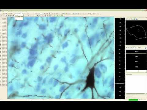 Webinar: Practical Demonstration of Neuron Reconstruction with Neurolucida