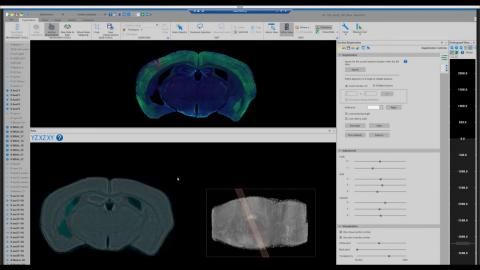 Charting a Course for Brain Mapping — SfN Global Connectome Virtual Event
