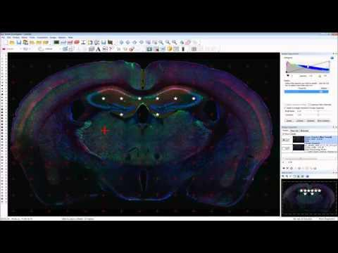 Creating effective graphics, images and videos using Neurolucida & Stereo Investigator