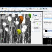 Using Neurolucida 360 for Automatic Neuron Reconstruction and Analysis