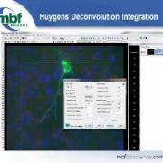 Webinar: New Features in Version 10 Neurolucida and Stereo Investigator