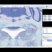 brain mapping with version 11 webinar